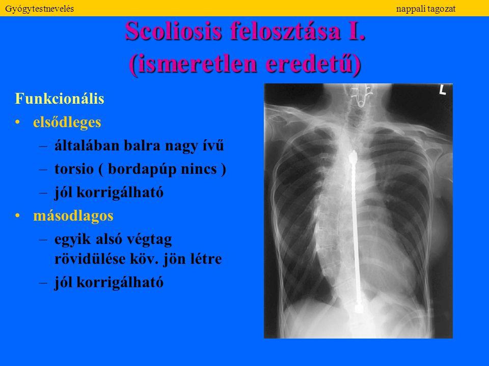 Scoliosis felosztása I. (ismeretlen eredetű)