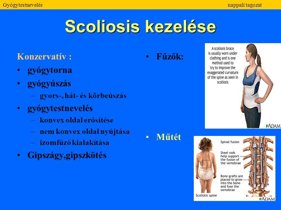 Scoliosis kezelése Konzervatív : gyógytorna gyógyúszás