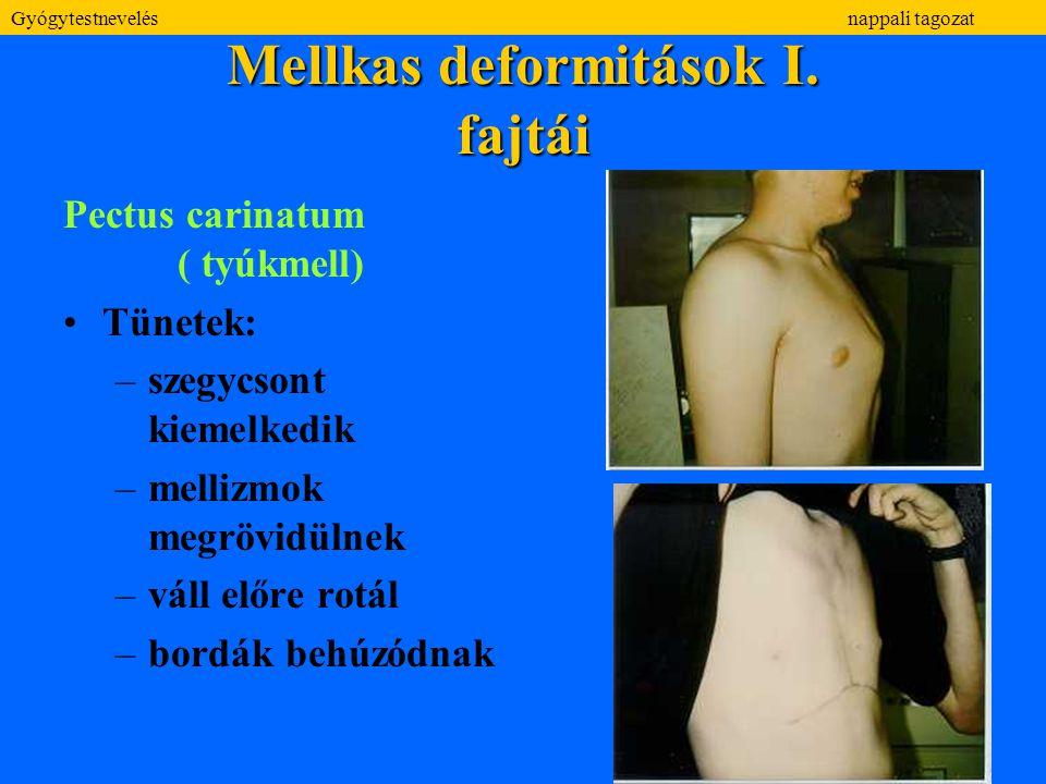 Mellkas deformitások I. fajtái