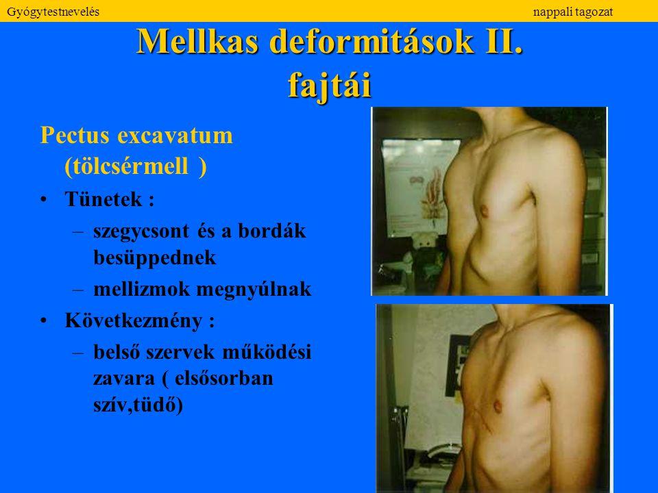 Mellkas deformitások II. fajtái