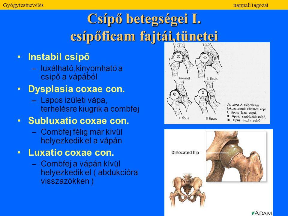 Csípő betegségei I. csípőficam fajtái,tünetei