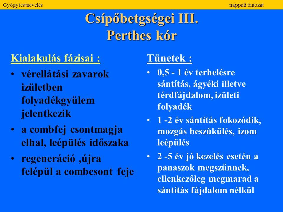Csípőbetgségei III. Perthes kór