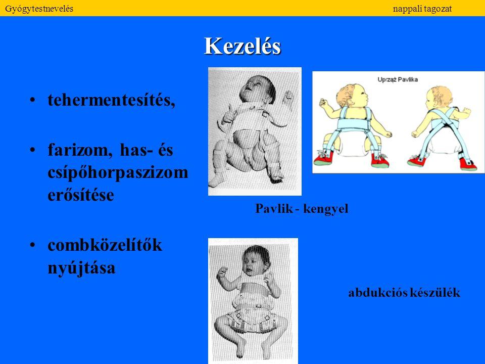 Kezelés tehermentesítés, farizom, has- és csípőhorpaszizom erősítése