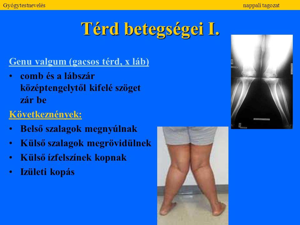 Térd betegségei I. Genu valgum (gacsos térd, x láb)