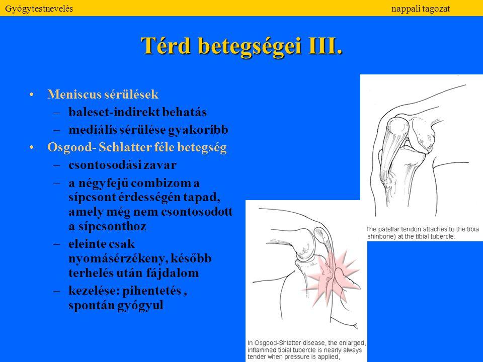 Térd betegségei III. Meniscus sérülések baleset-indirekt behatás