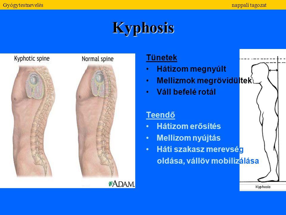 Kyphosis Tünetek Hátizom megnyúlt Mellizmok megrövidültek