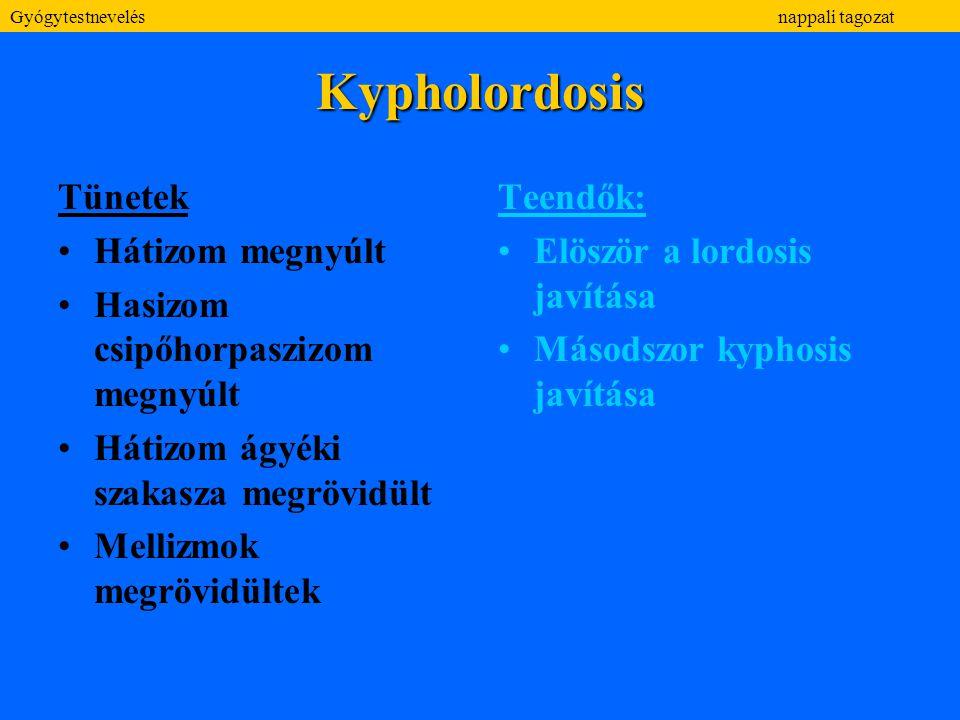 Kypholordosis Tünetek Hátizom megnyúlt