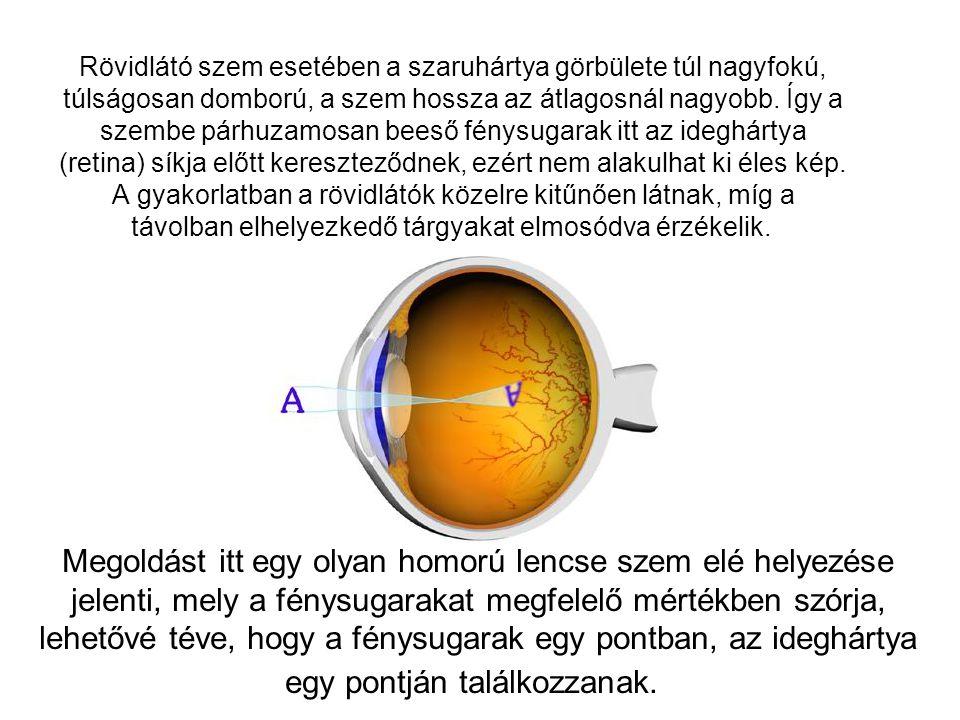 Rövidlátó szem esetében a szaruhártya görbülete túl nagyfokú, túlságosan domború, a szem hossza az átlagosnál nagyobb. Így a szembe párhuzamosan beeső fénysugarak itt az ideghártya (retina) síkja előtt kereszteződnek, ezért nem alakulhat ki éles kép. A gyakorlatban a rövidlátók közelre kitűnően látnak, míg a távolban elhelyezkedő tárgyakat elmosódva érzékelik.