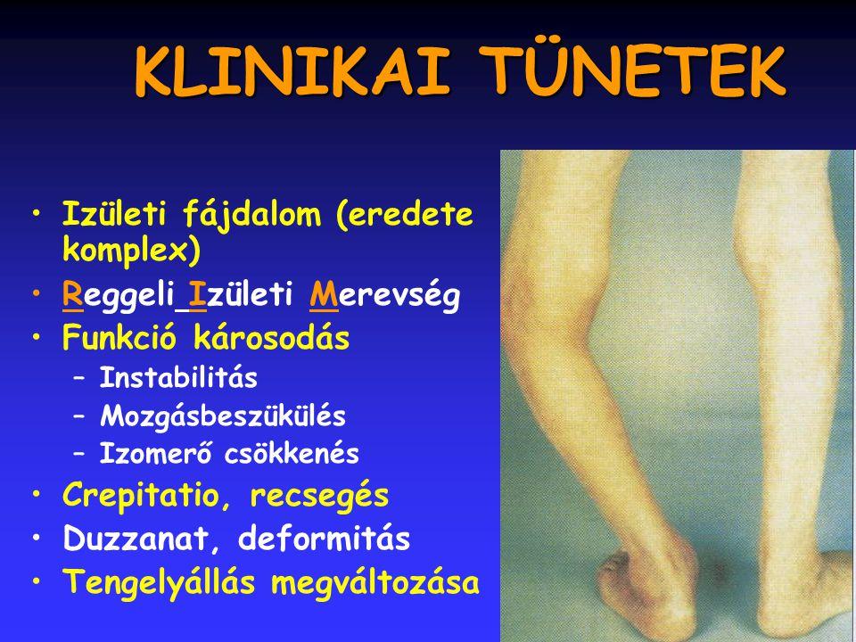 KLINIKAI TÜNETEK Izületi fájdalom (eredete komplex)