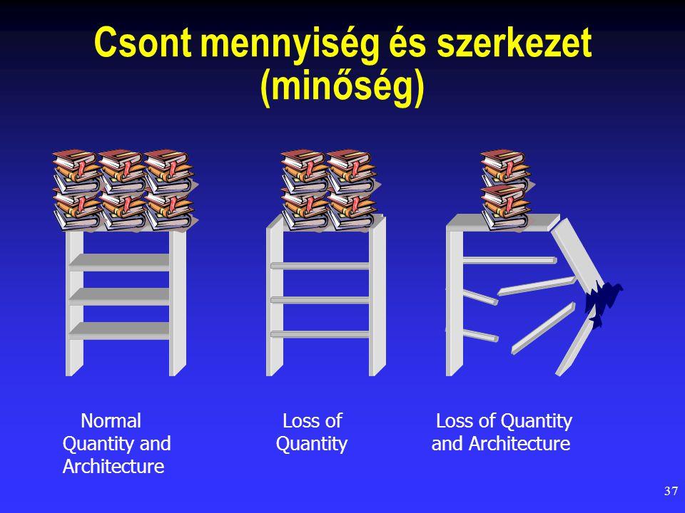 Csont mennyiség és szerkezet (minőség)