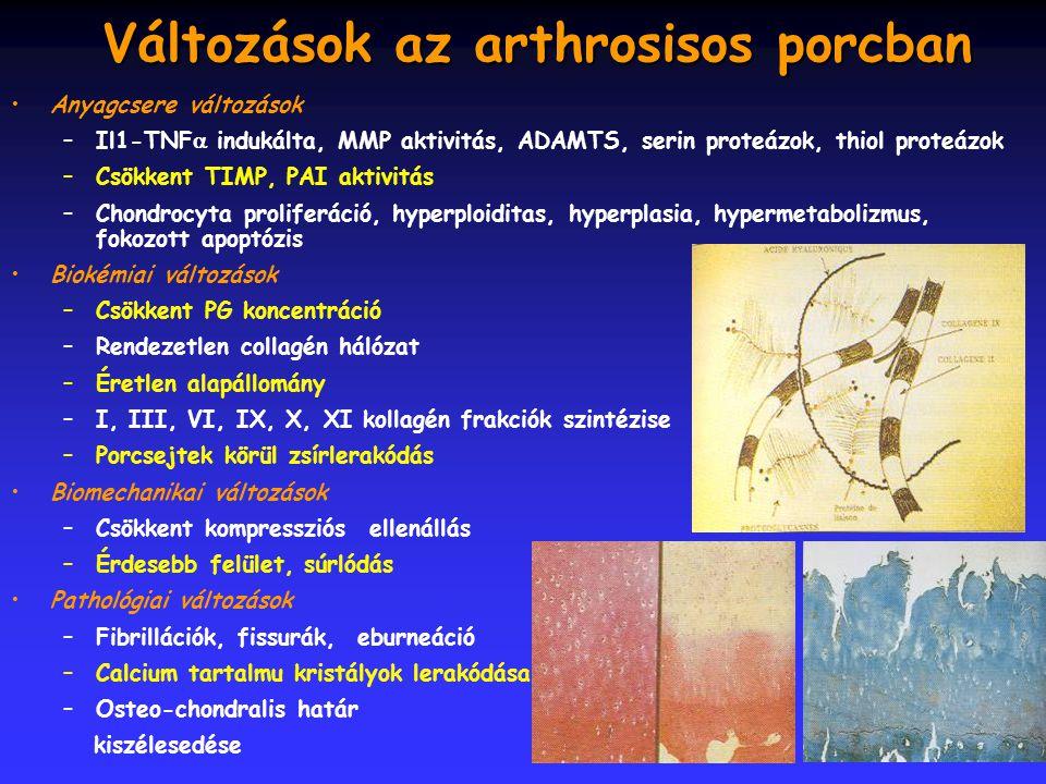 Változások az arthrosisos porcban