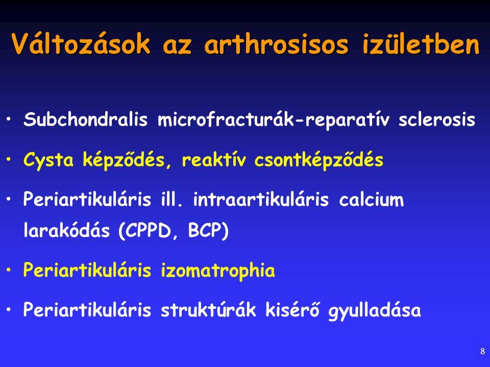 Változások az arthrosisos izületben