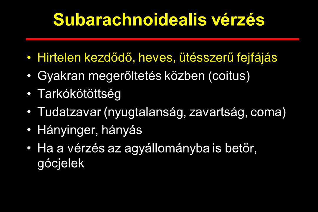 Subarachnoidealis vérzés