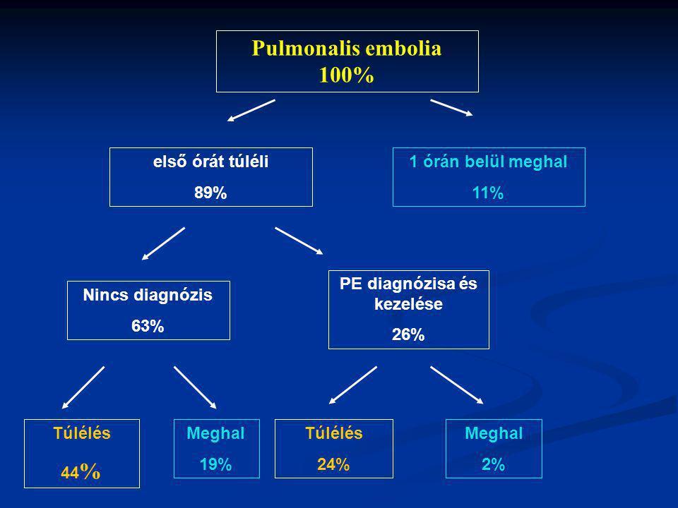 PE diagnózisa és kezelése
