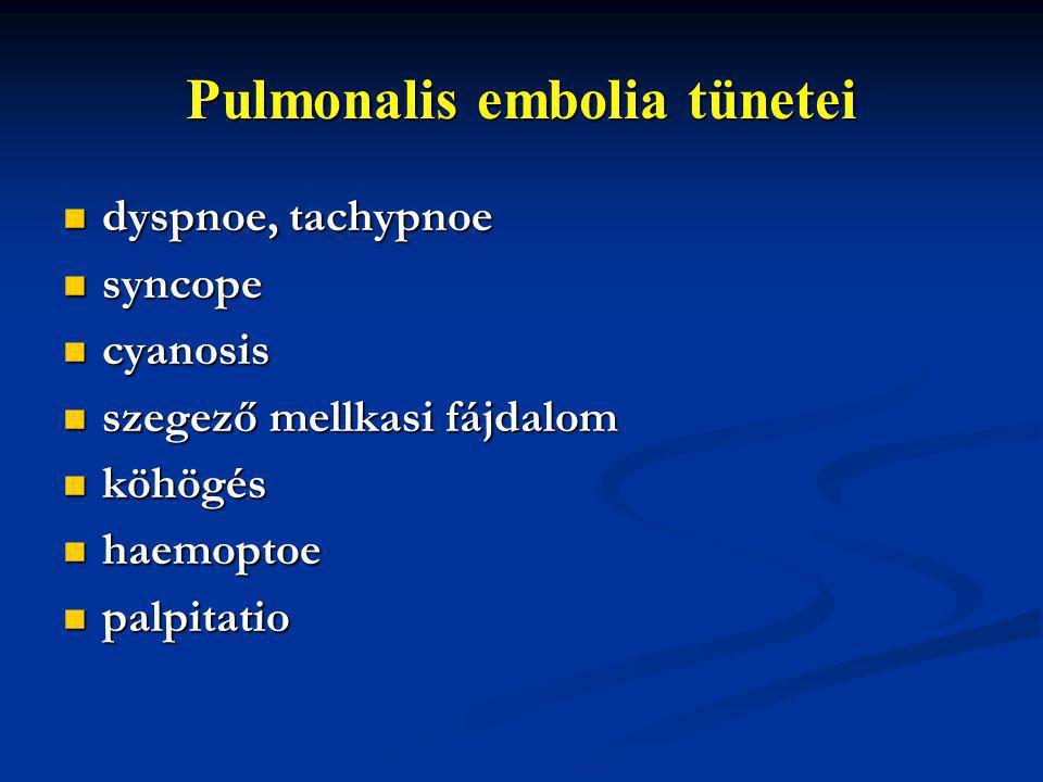 Pulmonalis embolia tünetei