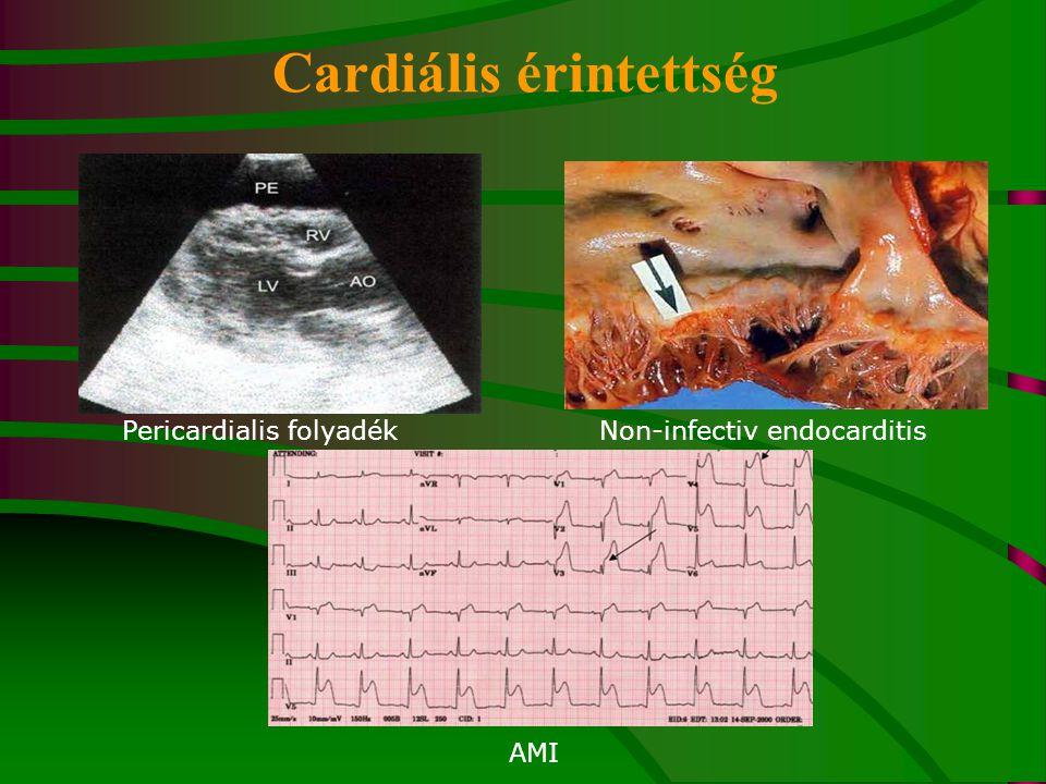 Cardiális érintettség