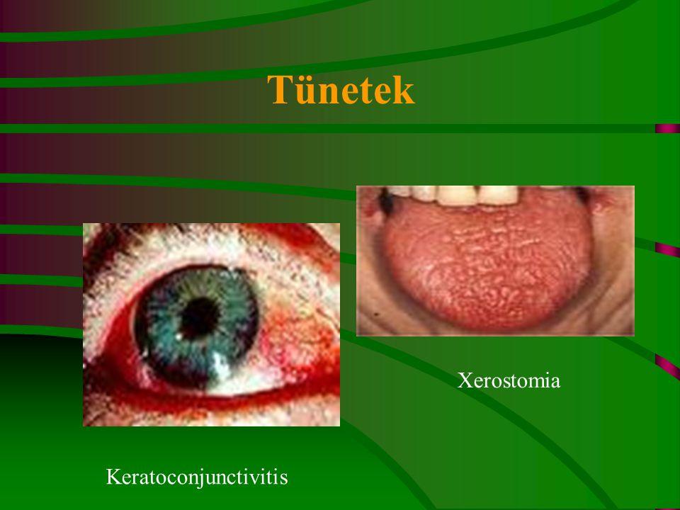 Tünetek Xerostomia Keratoconjunctivitis