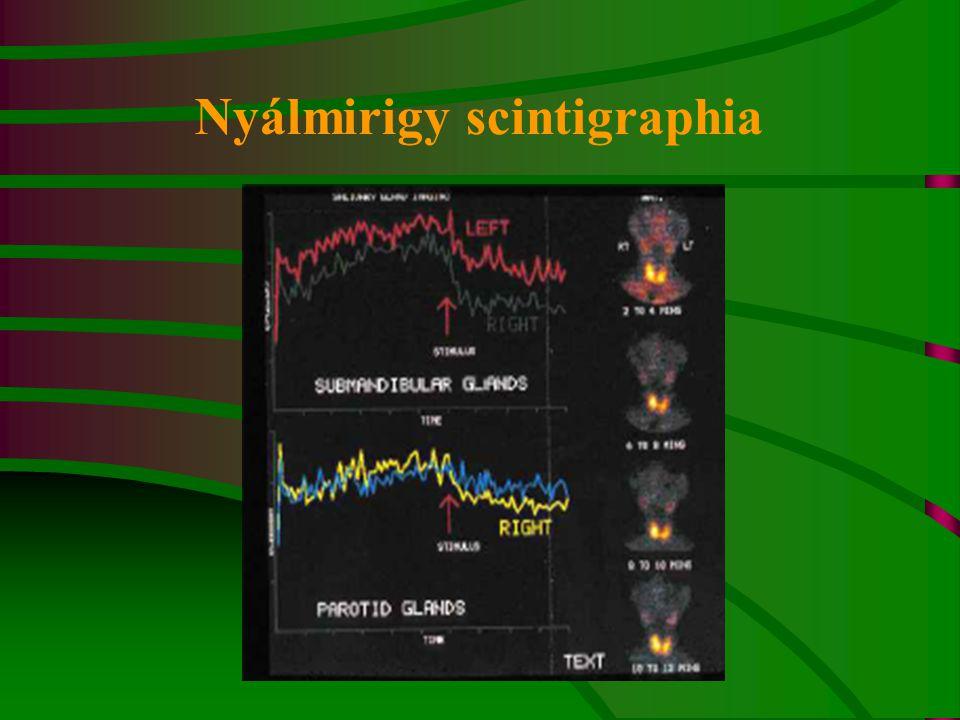 Nyálmirigy scintigraphia