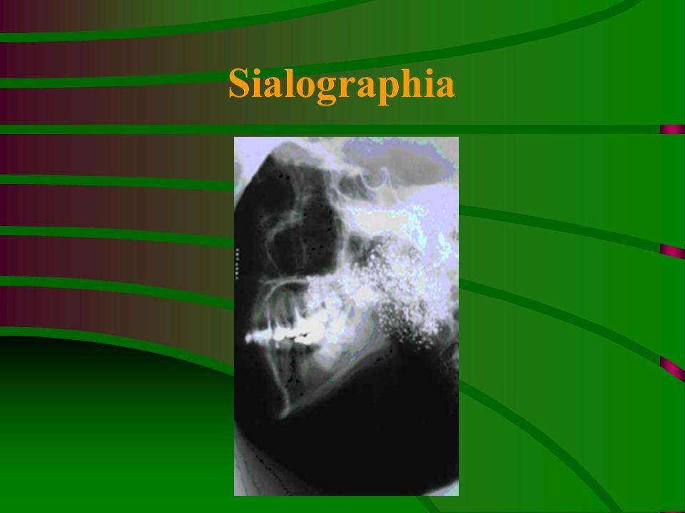 Sialographia