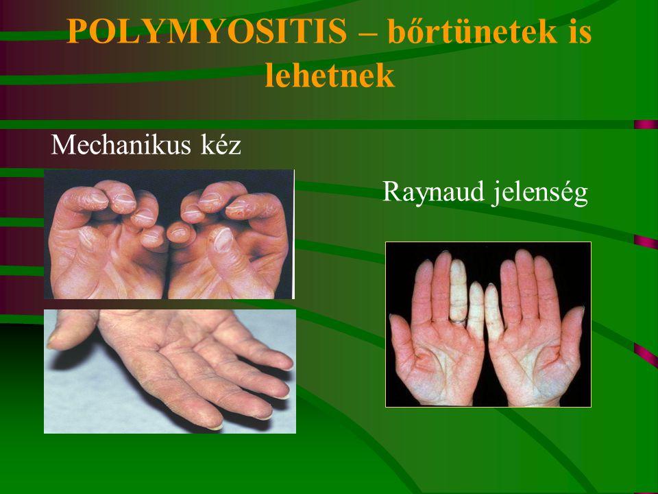 POLYMYOSITIS – bőrtünetek is lehetnek