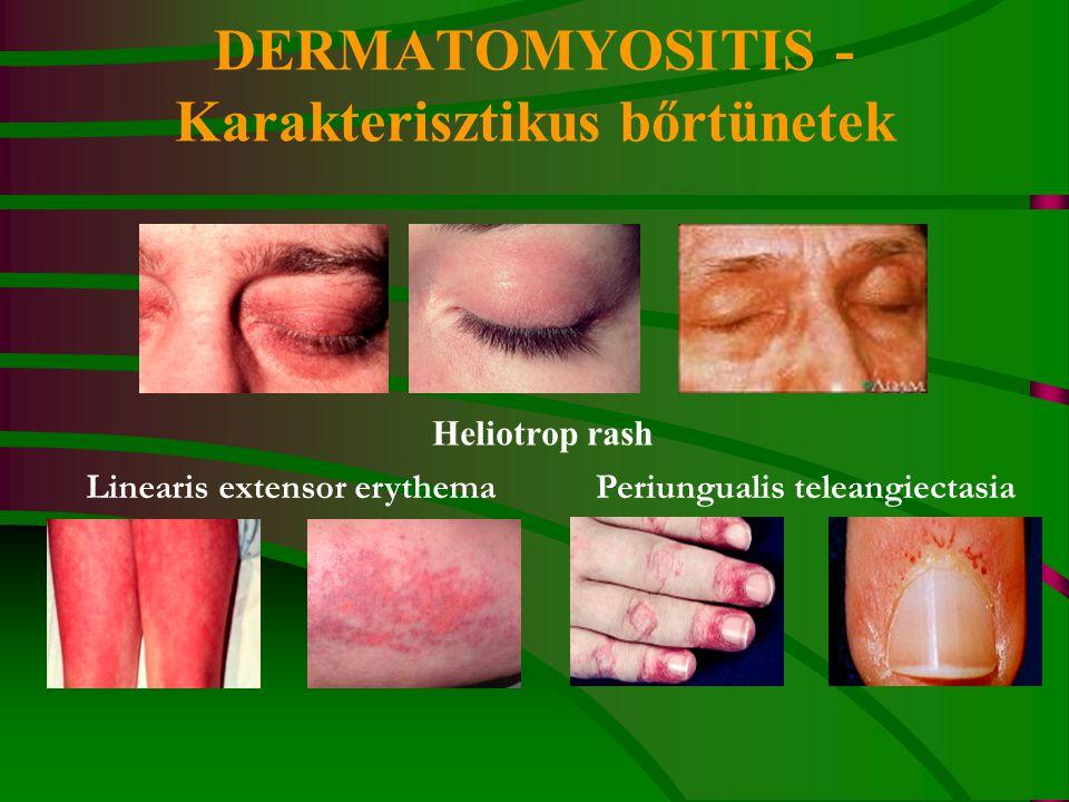 DERMATOMYOSITIS - Karakterisztikus bőrtünetek
