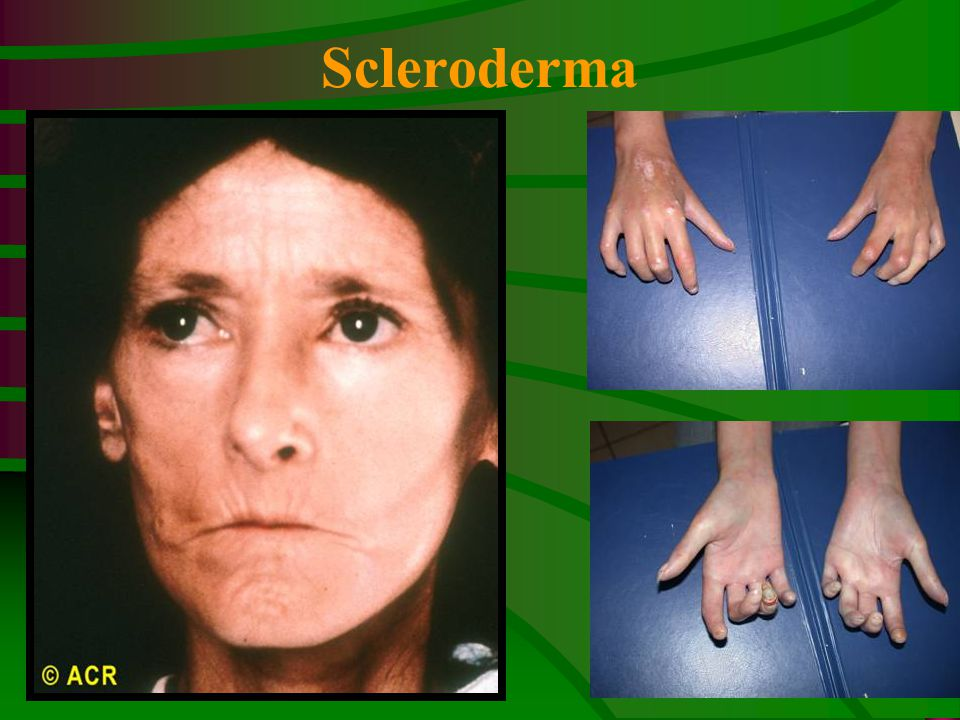 Scleroderma Scleroderma: Mauskopf, facial changes