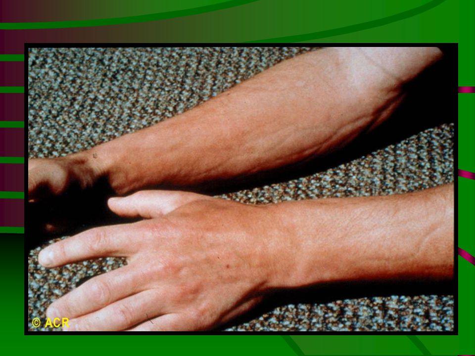 Eosinophilic fasciitis: groove sign, forearm