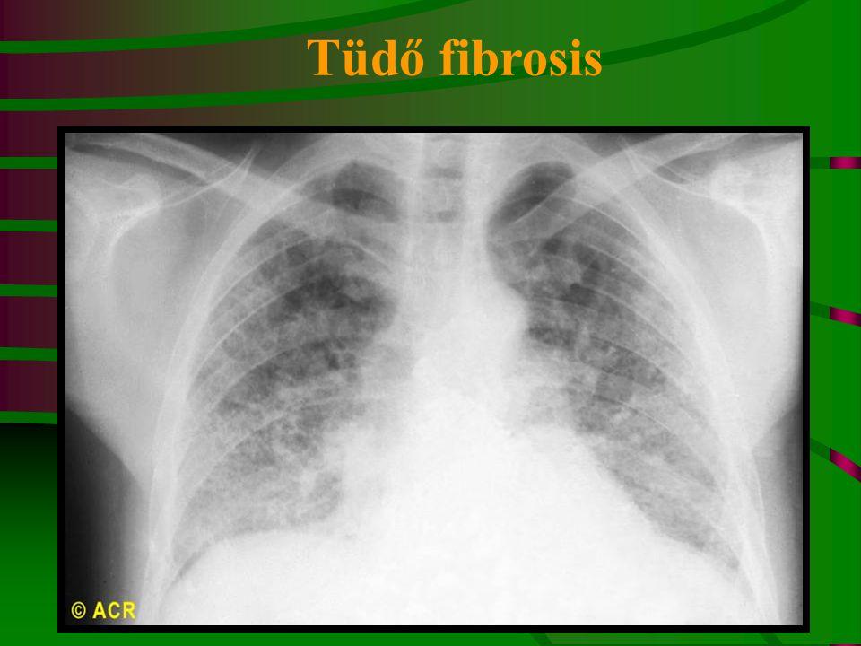 Tüdő fibrosis Scleroderma: pulmonary fibrosis (radiograph)