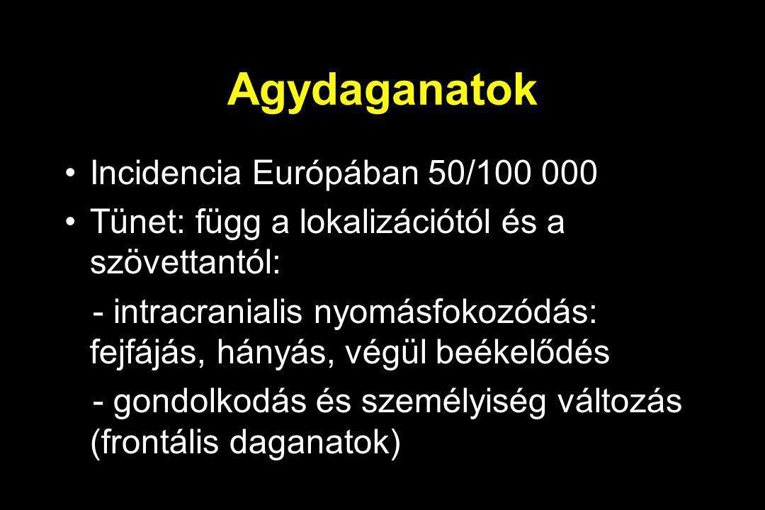 Agydaganatok Incidencia Európában 50/100 000