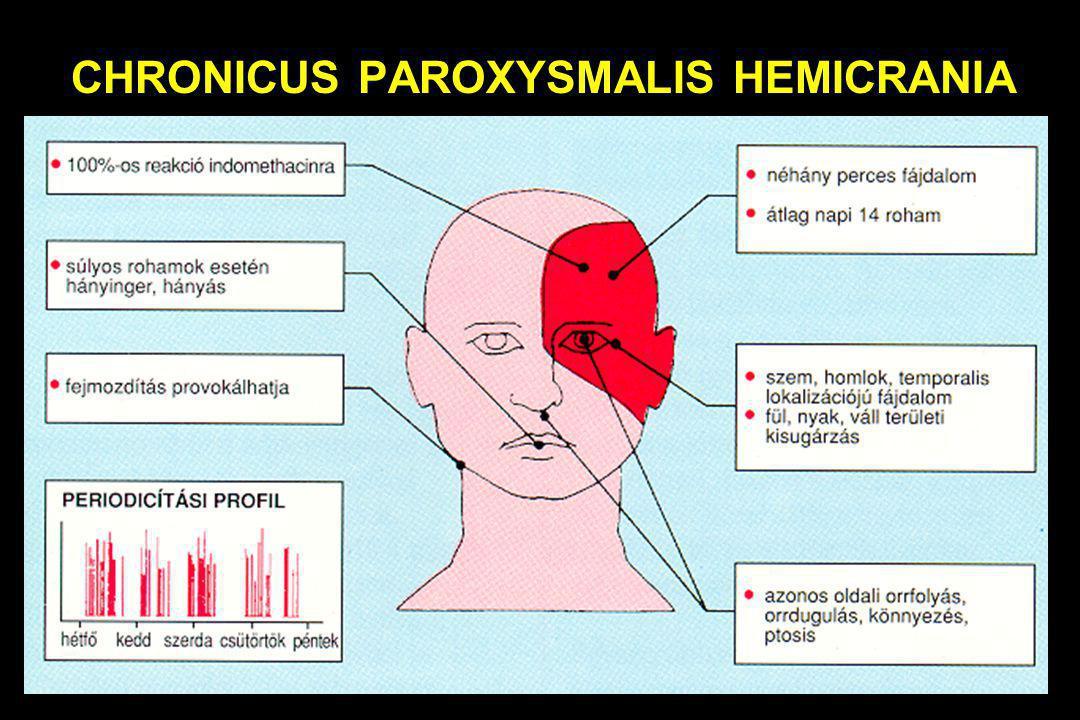 CHRONICUS PAROXYSMALIS HEMICRANIA