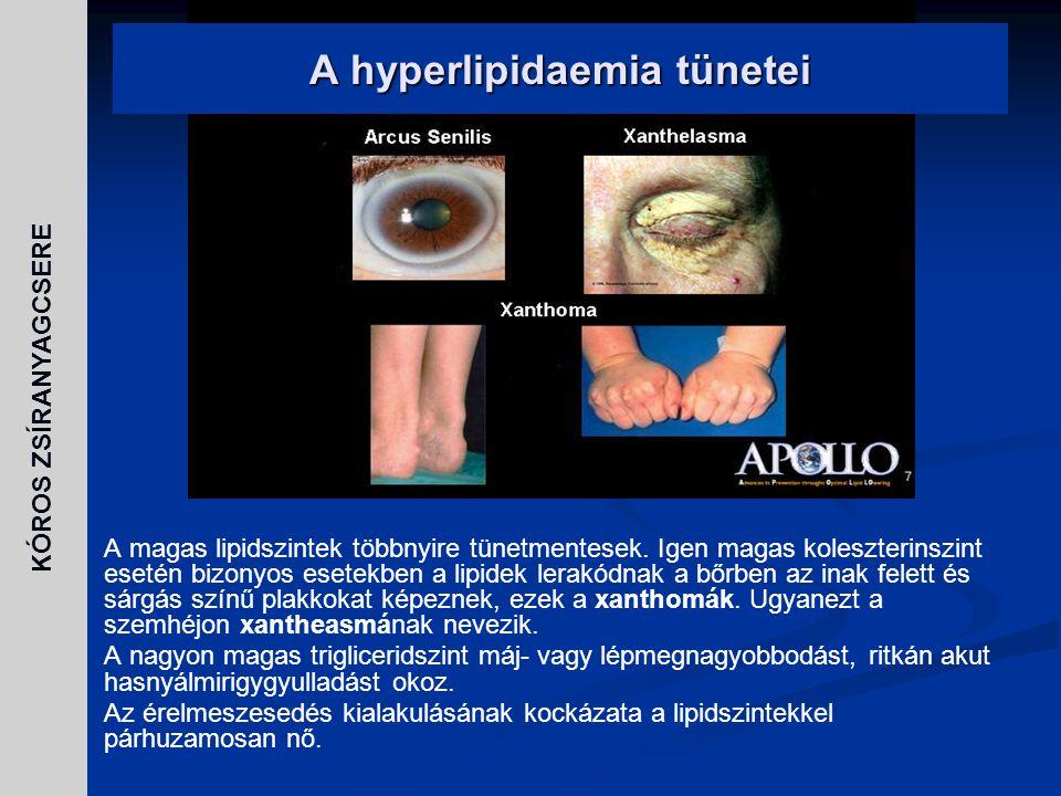 A hyperlipidaemia tünetei