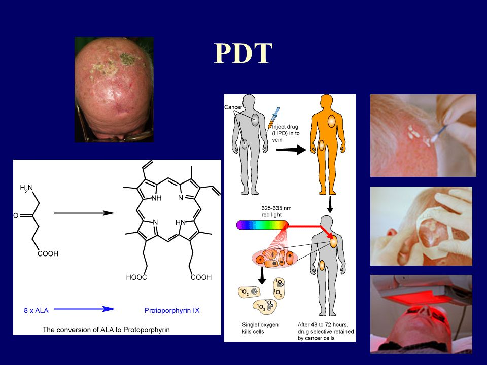 PDT Treatment with drugs that become active when exposed to light. These drugs kill cancer cells.