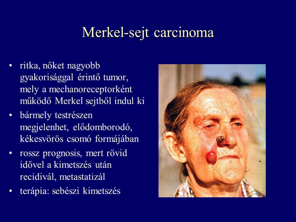 Merkel-sejt carcinoma