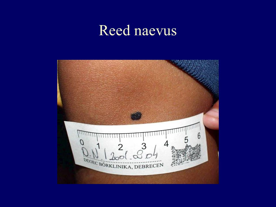 Reed naevus