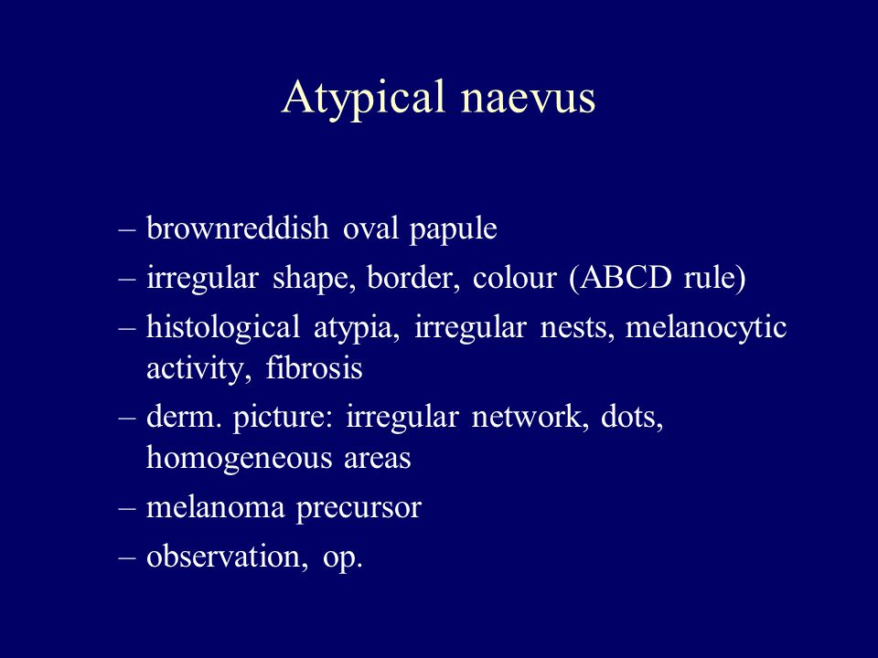 Atypical naevus brownreddish oval papule