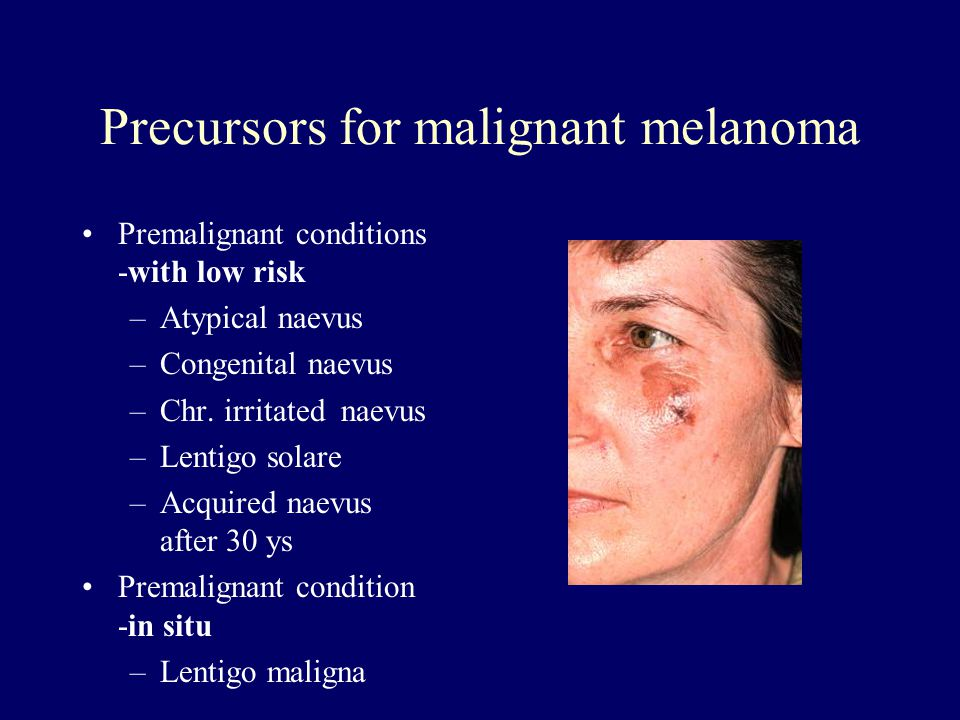 Precursors for malignant melanoma