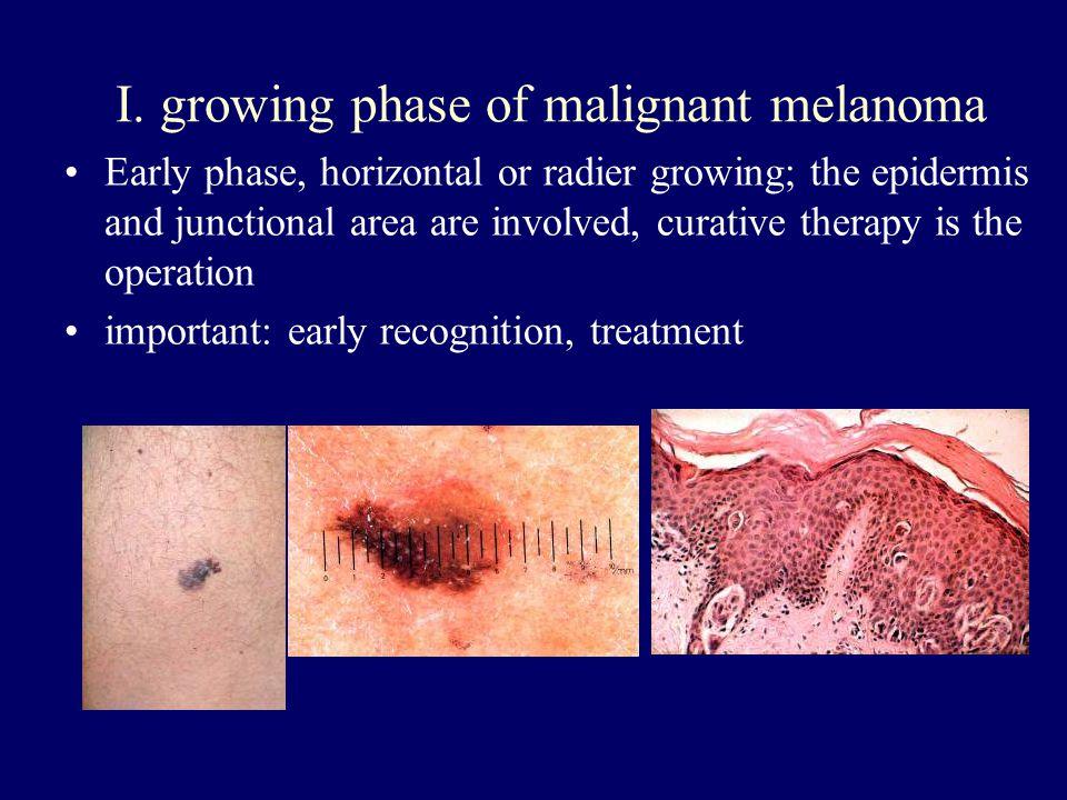 I. growing phase of malignant melanoma