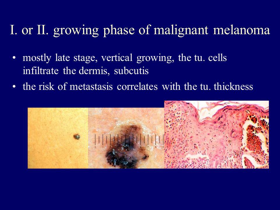 I. or II. growing phase of malignant melanoma