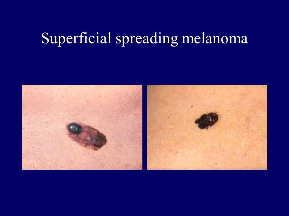 Superficial spreading melanoma