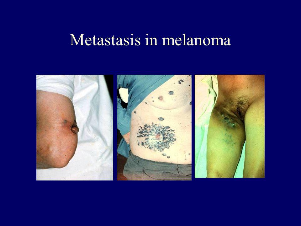 Metastasis in melanoma