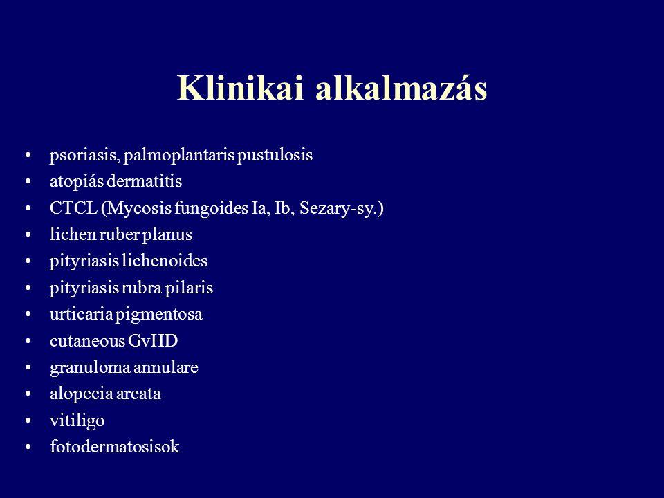 Klinikai alkalmazás psoriasis, palmoplantaris pustulosis