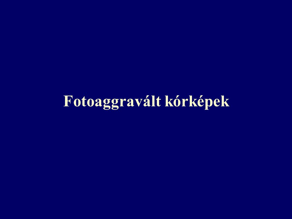 Fotoaggravált kórképek