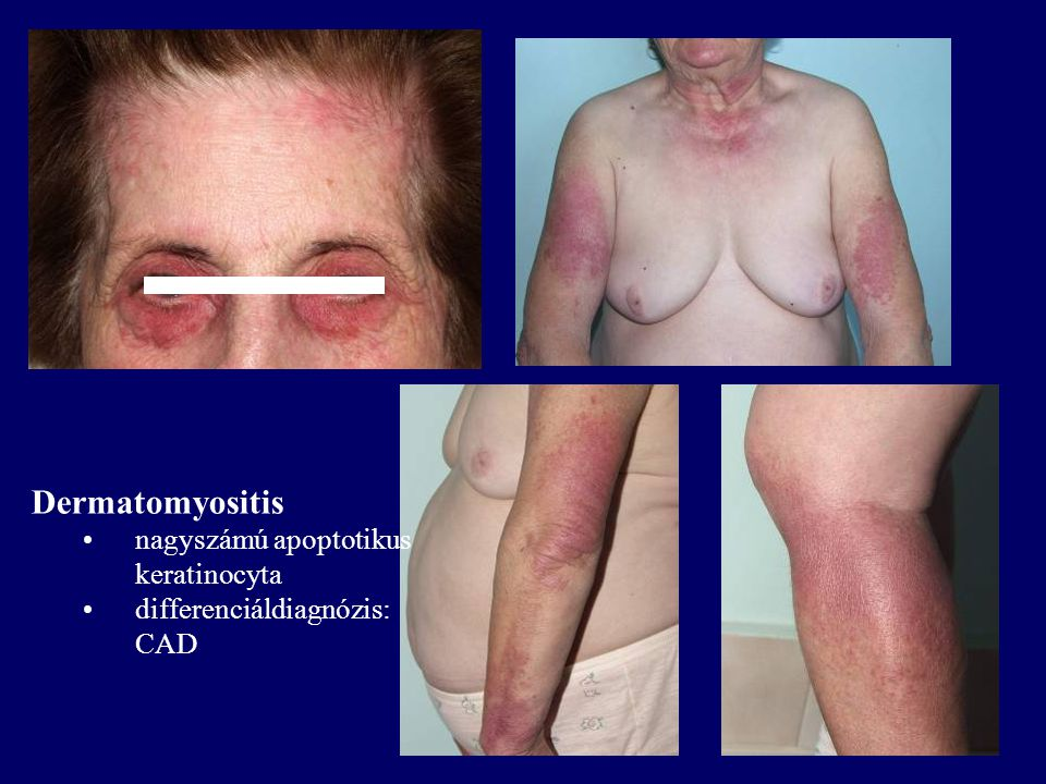 Dermatomyositis nagyszámú apoptotikus keratinocyta