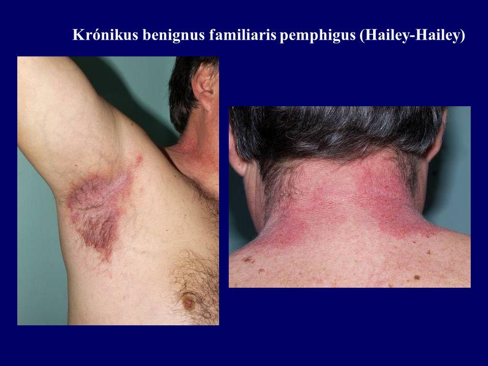 Krónikus benignus familiaris pemphigus (Hailey-Hailey)