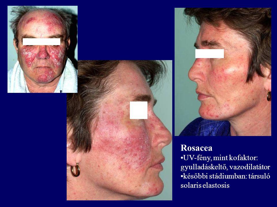 Rosacea UV-fény, mint kofaktor: gyulladáskeltő, vazodilatátor