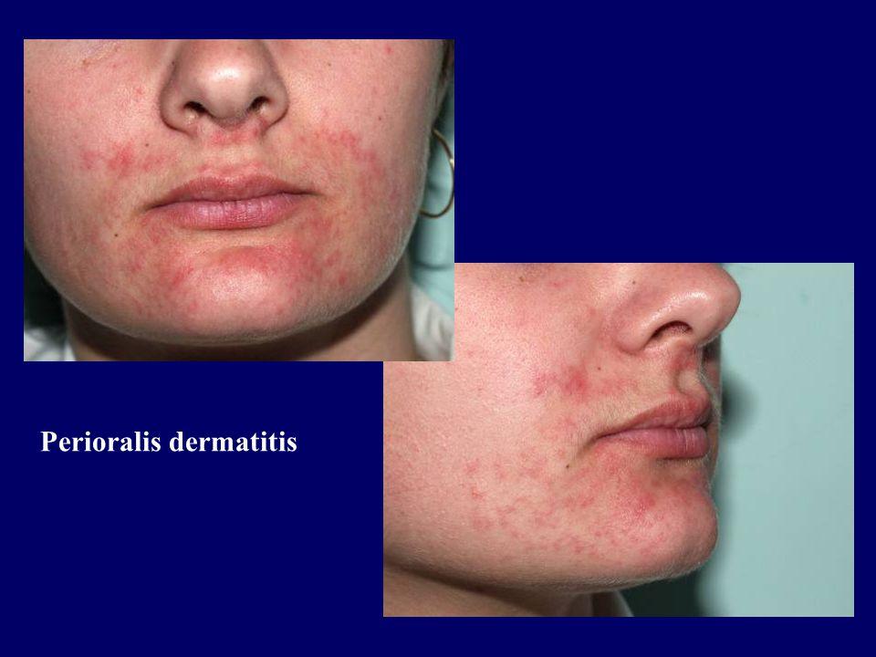 Perioralis dermatitis
