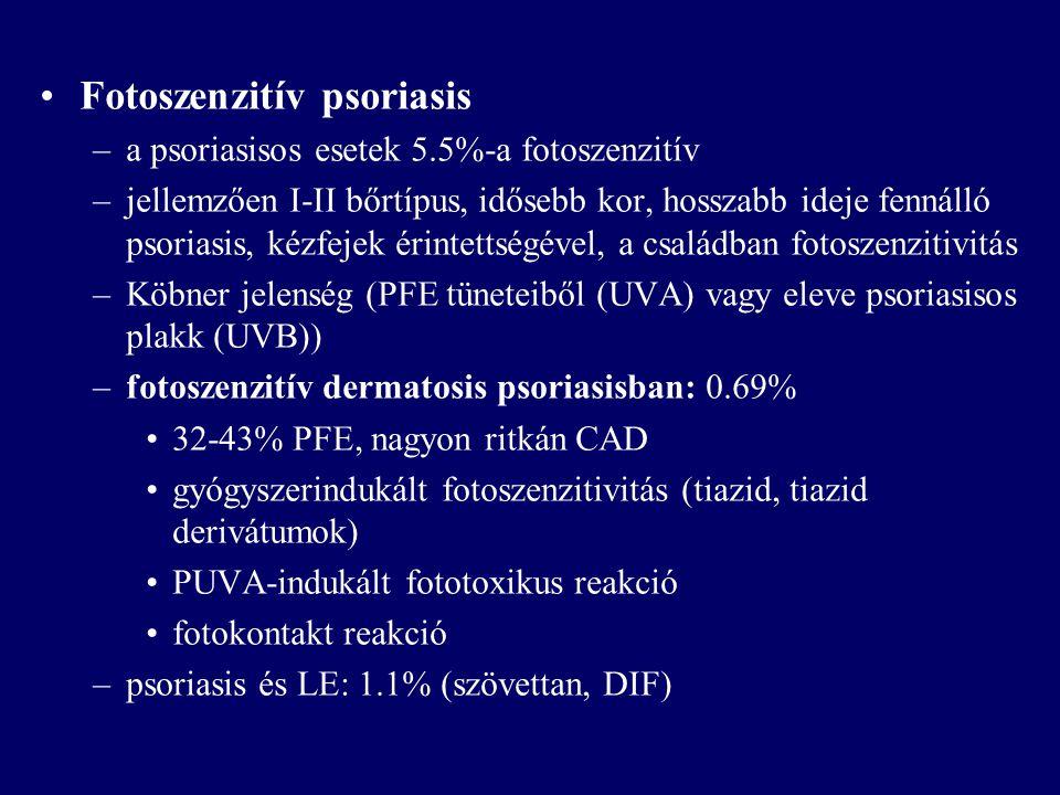 Fotoszenzitív psoriasis