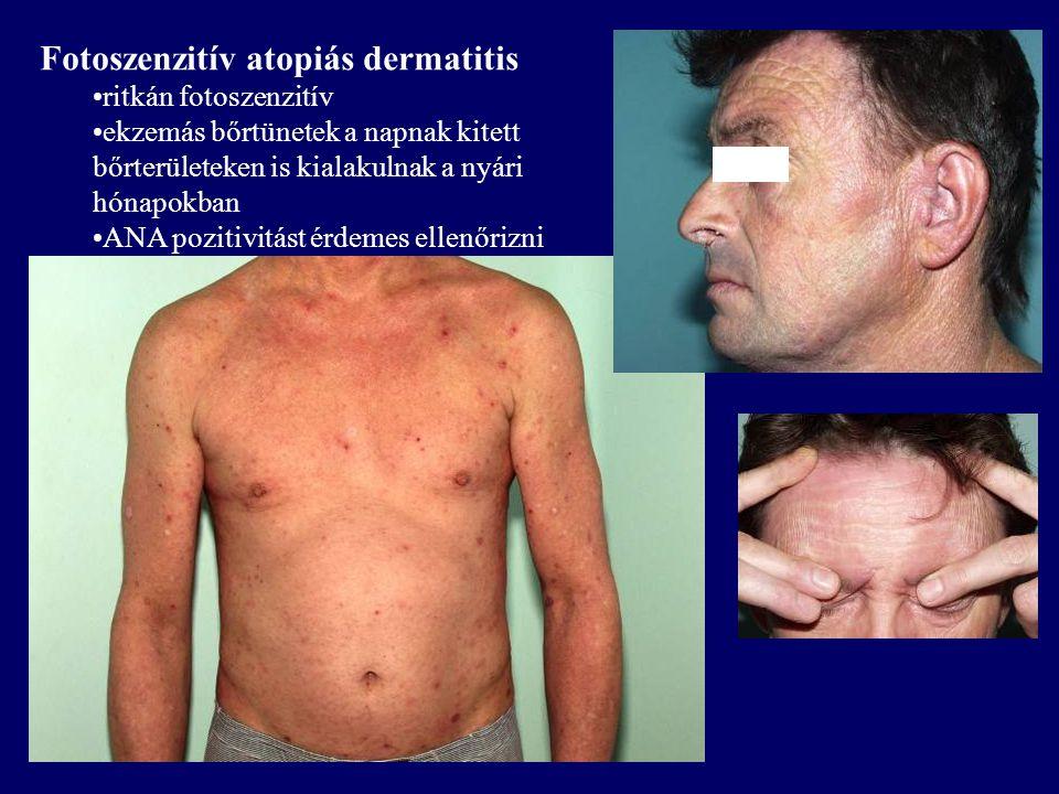 Fotoszenzitív atopiás dermatitis