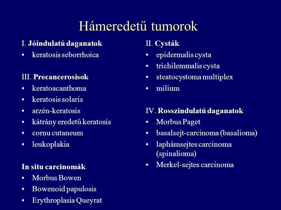 Hámeredetű tumorok I. Jóindulatú daganatok keratosis seborrhoica