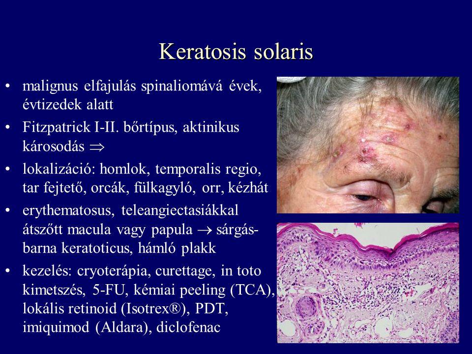 Keratosis solaris malignus elfajulás spinaliomává évek, évtizedek alatt. Fitzpatrick I-II. bőrtípus, aktinikus károsodás 